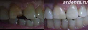 Световая пломба на восстановление зуба