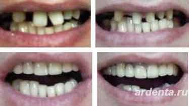 виниры на очень кривые зубы