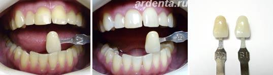 отбеливание зубов без перекиси водорода
