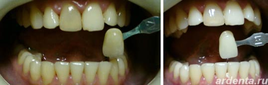 Отбеливание зубов фото. До и после отбеливания.