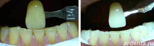 Рекомендации после отбеливания зубов.