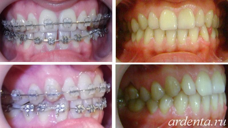 брекеты сапфировые до и после фото