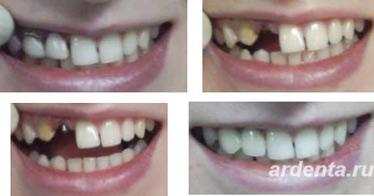 Протезирование зубов металлокерамикой, цена на коронку в.
