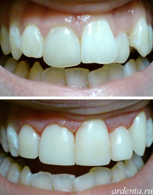 Фото виниры на кривые передние зубы фото