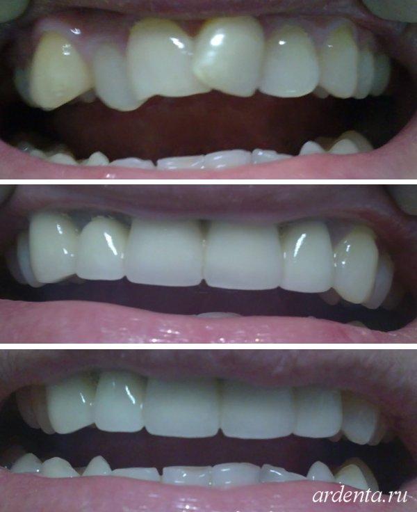Можно ли исправить кривые зубы коронками