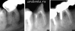 сохранение зуба с большим воспалением