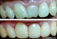 поворот зуба фото