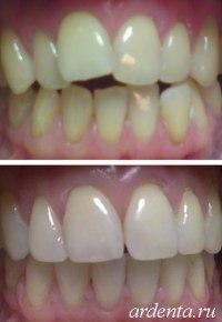 поворот зубов брекетами