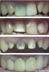 поворот зубов фото