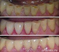 разворот зуба