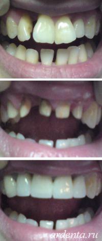 разворот зубов