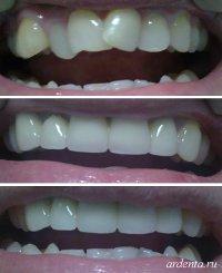 ротация зубов