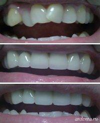 выступающие зубы фото