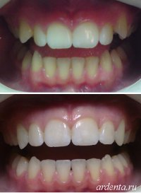 выступающие зубы