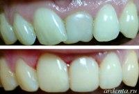 выступающий зуб