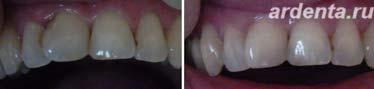 зуб повернулся вокруг своей оси