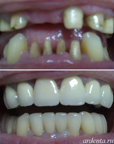Металлокерамика зубы цена ростов на дону