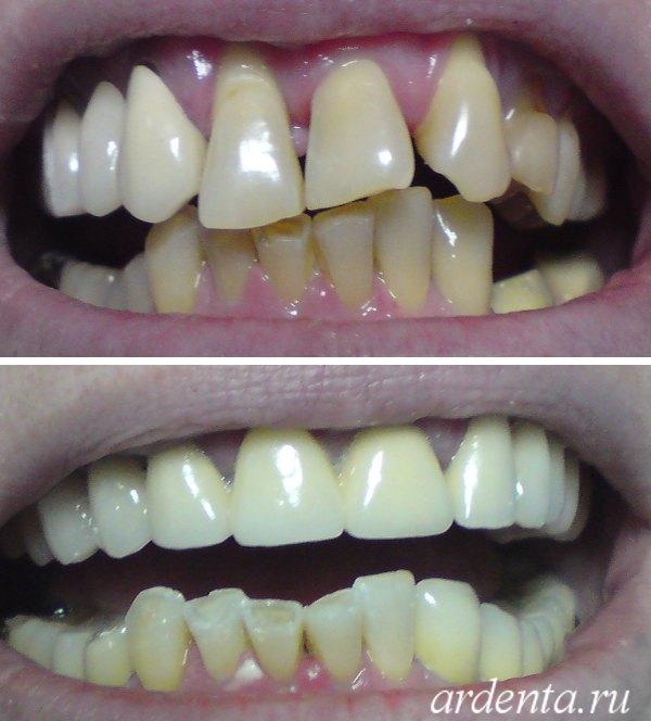 виниры цена за 1 зуб в рязани