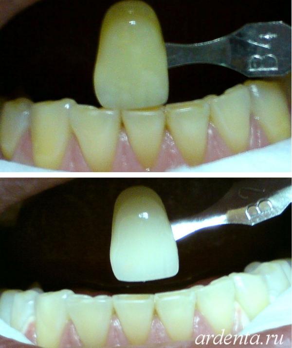 отбеливание зубов ростов