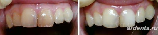 отбеливание зубов ростов на дону