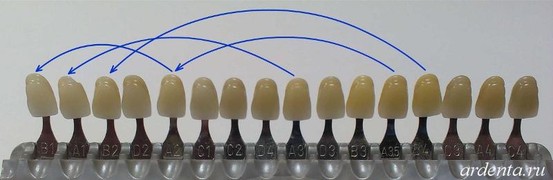 отбеливание зубов с помощью лимона и соды