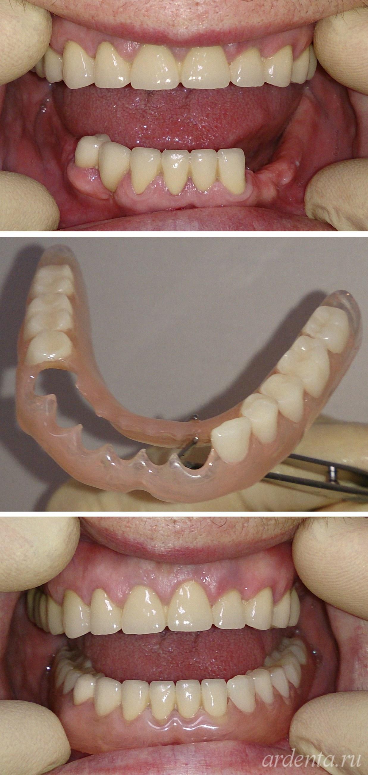 Как быть если зубной протез сделали плохо 382