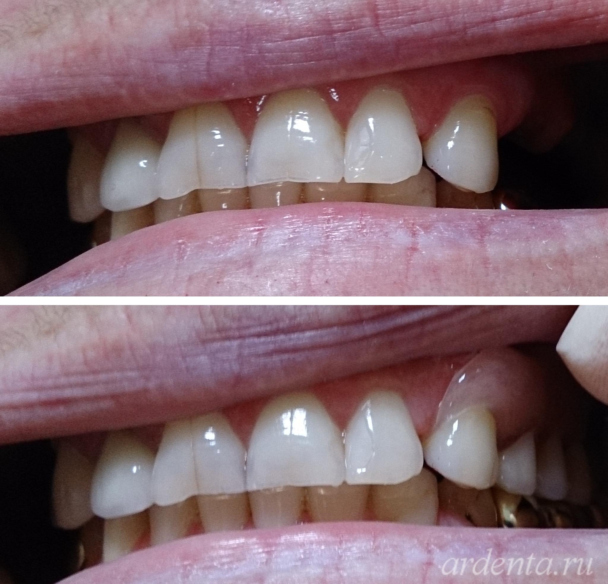 небо отбеливание зубов
