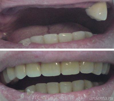 съемные виниры на нижний ряд зубов купить