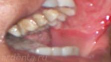 язвенный стоматит во рту из-за плохой гигиены (начало стоматита)