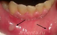 стоматит афтозный (две афты на внутренней поверхности губы)