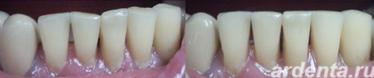 ложные развороты зубов