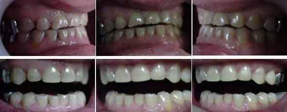 виниры на зубы казань цены городская стоматология