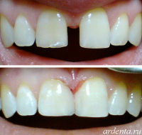 http://www.ardenta.ru/photo/diastema/diastema-zubov.jpg